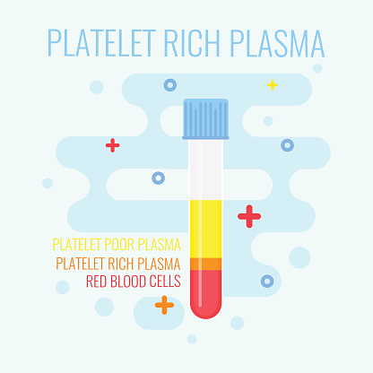 Platelet Rich Plasma PRP treatment diagram from SmileCOS Dentistry.