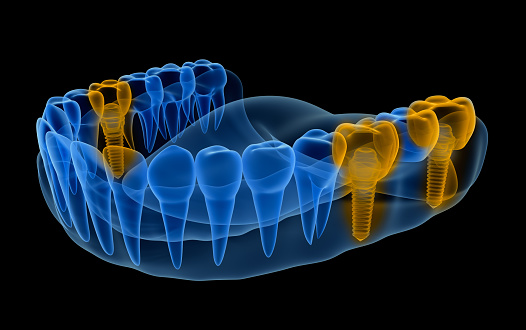 Digital rendering of single tooth implants at SmileCOS Dentistry in Colorado Springs, CO.