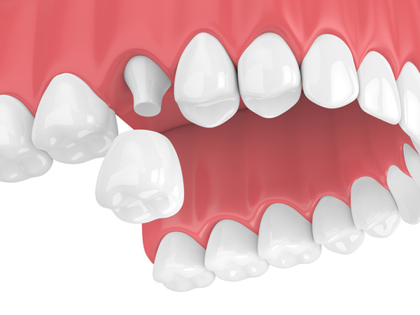 Rendering of jaw with dental crown