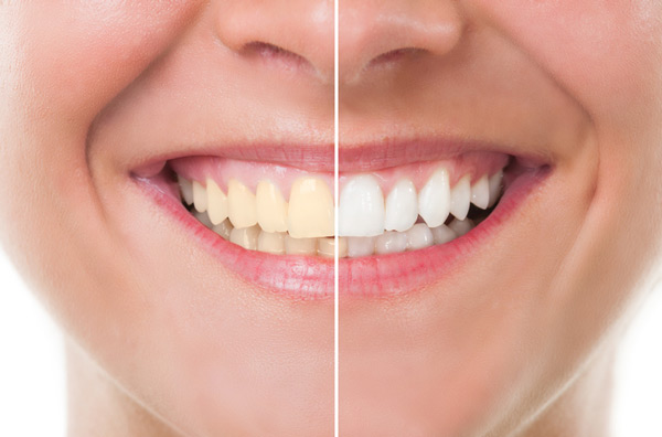 Before and after photo of teeth whitening treatment from SmileCOS Dentistry.