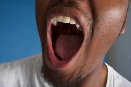 Is Dry Mouth Something to Just Live With?